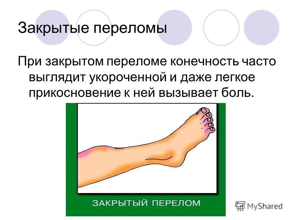 Закрытые переломы При закрытом переломе конечность часто выглядит укороченной и даже легкое прикосновение к ней вызывает боль.