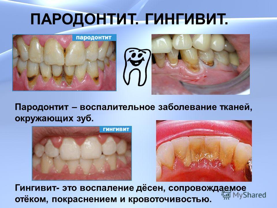 ПАРОДОНТИТ. ГИНГИВИТ. Пародонтит – воспалительное заболевание тканей, окружающих зуб. Гингивит- это воспаление дёсен, сопровождаемое отёком, покраснением и кровоточивостью.