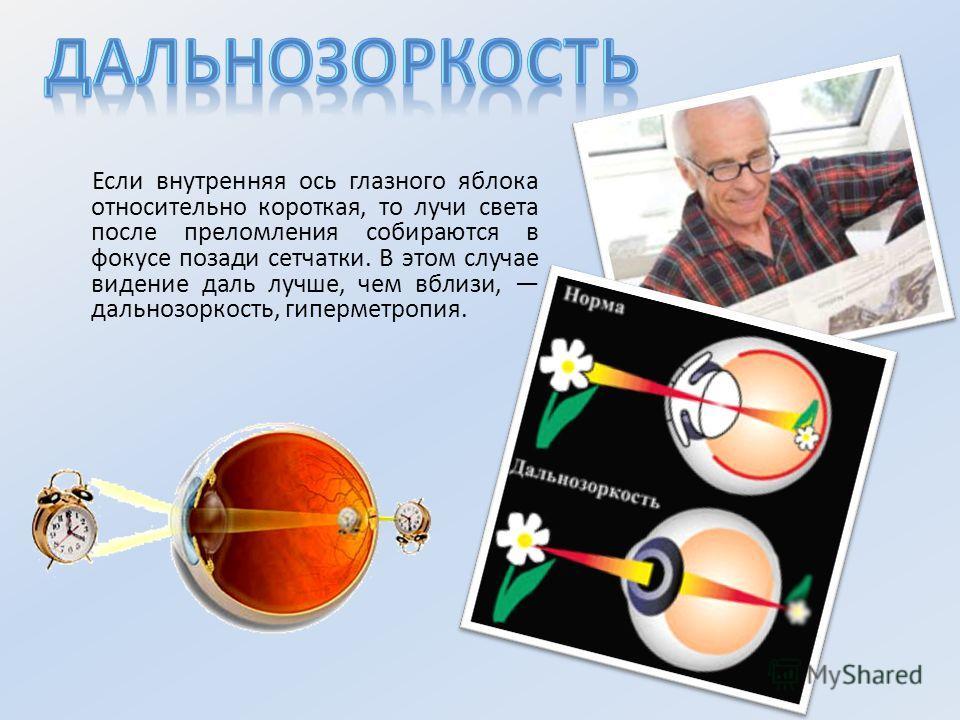 Если внутренняя ось глазного яблока относительно короткая, то лучи света после преломления собираются в фокусе позади сетчатки. В этом случае видение даль лучше, чем вблизи, дальнозоркость, гиперметропия.