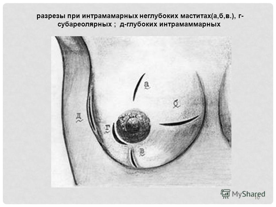 разрезы при интрамамарных неглубоких маститах(а,б,в.), г- субареолярных ; д-глубоких интрамаммарных 10
