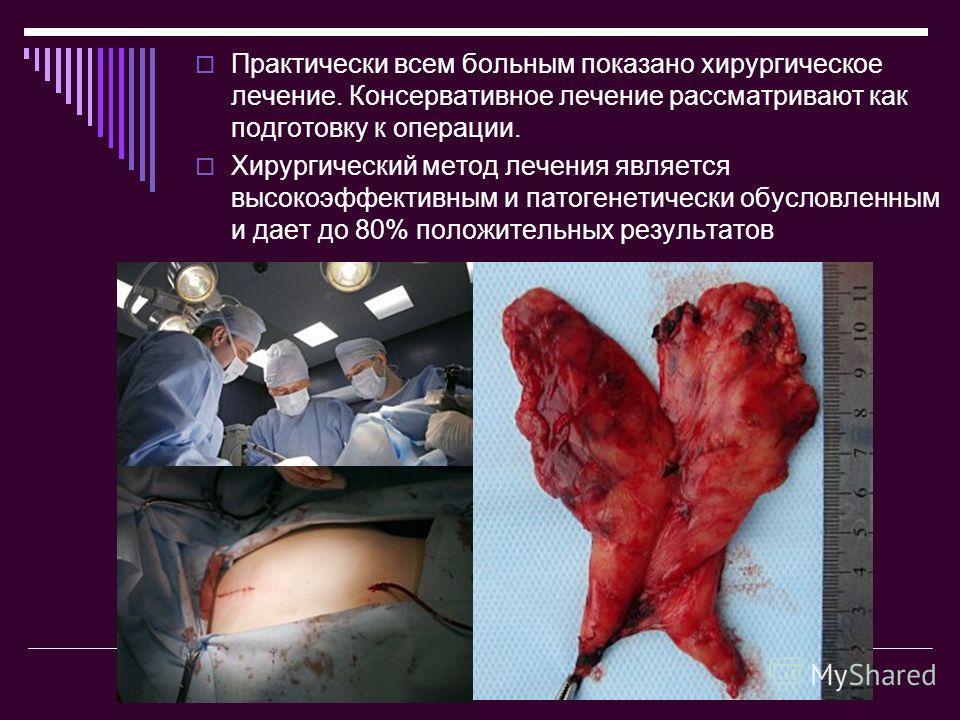 Практически всем больным показано хирургическое лечение. Консервативное лечение рассматривают как подготовку к операции. Хирургический метод лечения является высокоэффективным и патогенетически обусловленным и дает до 80% положительных результатов