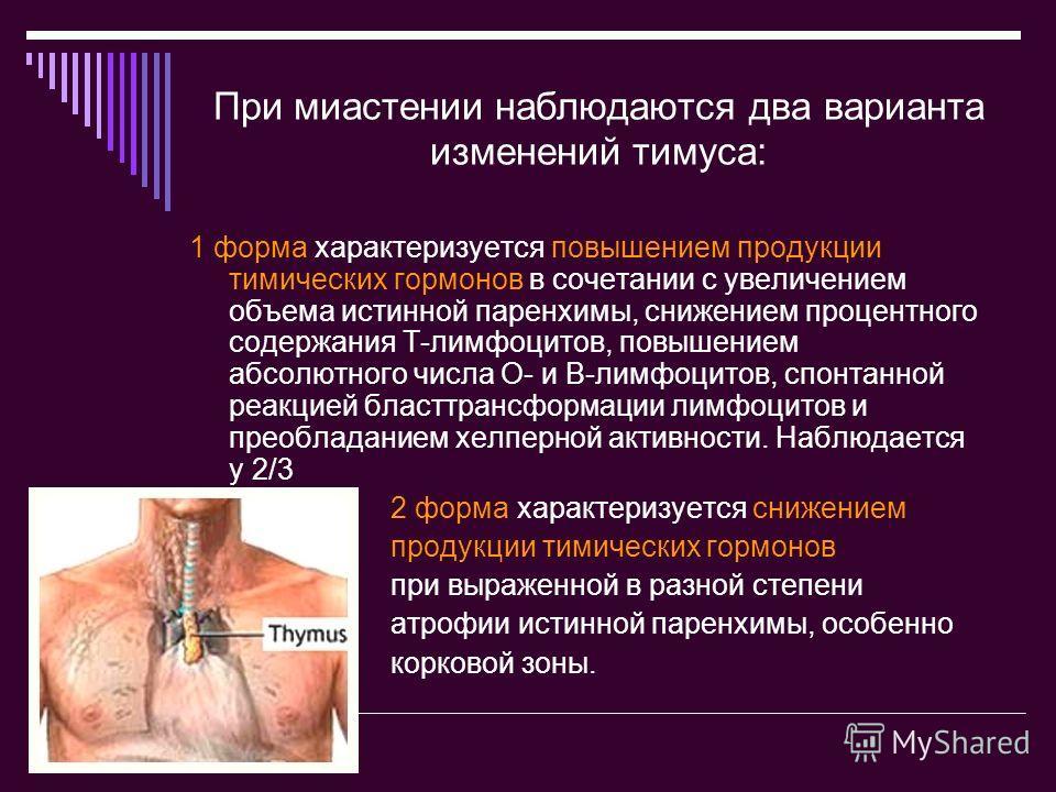 При миастении наблюдаются два варианта изменений тимуса: 1 форма характеризуется повышением продукции тимических гормонов в сочетании с увеличением объема истинной паренхимы, снижением процентного содержания Т-лимфоцитов, повышением абсолютного числа
