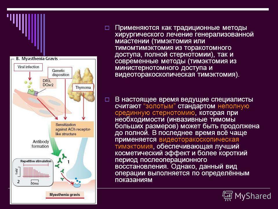 Применяются как традиционные методы хирургического лечение генерализованной миастении (тимэктомия или тимомтимэктомия из торакотомного доступа, полной стернотомии), так и современные методы (тимэктомия из министернотомного доступа и видеоторакоскопич