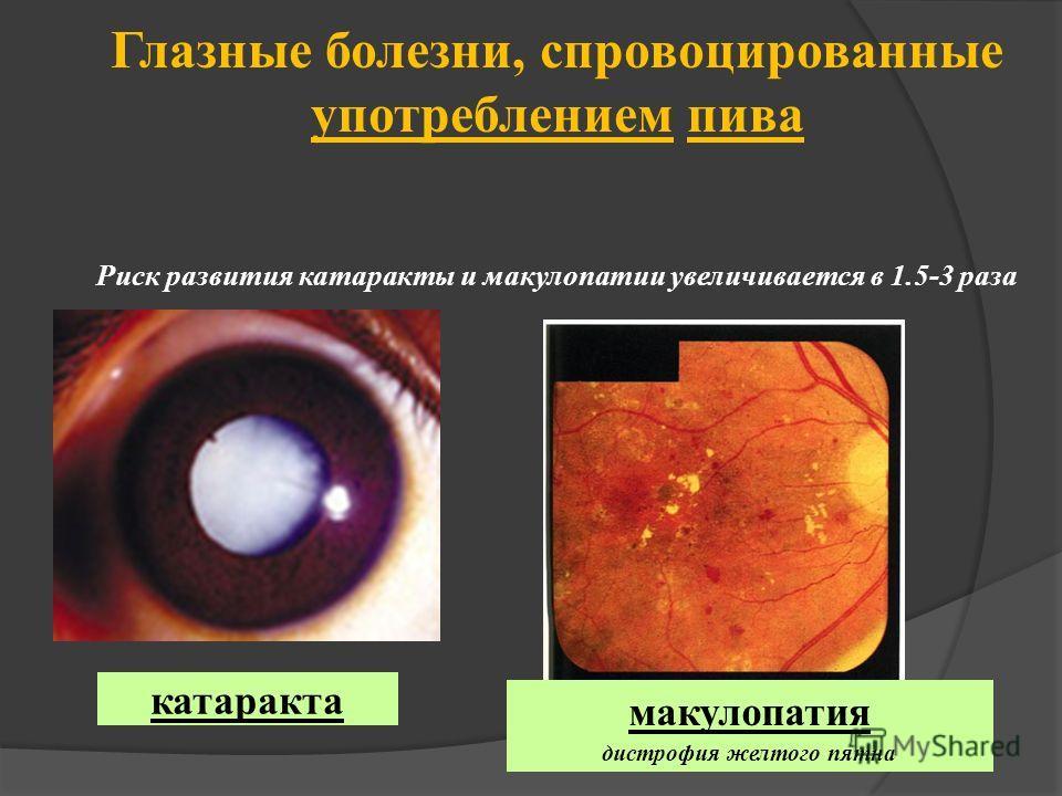 Глазные болезни, спровоцированные употреблением пива Риск развития катаракты и макулопатии увеличивается в 1.5-3 раза макулопатия дистрофия желтого пятна катаракта