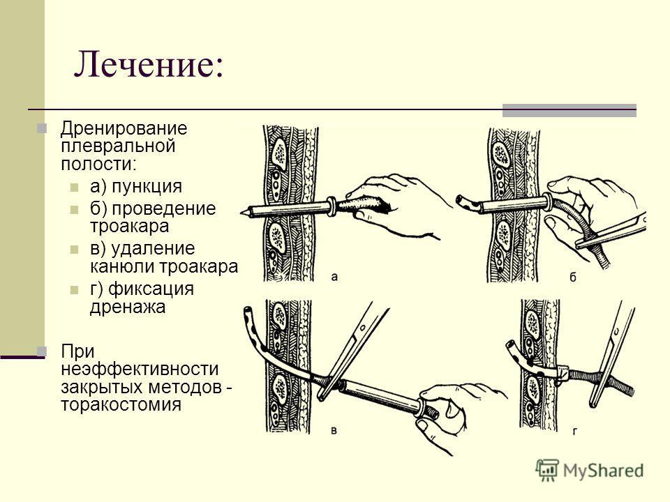 Лечение: Дренирование плевральной полости: а) пункция б) проведение троакара в) удаление канюли троакара г) фиксация дренажа При неэффективности закрытых методов - торакостомия