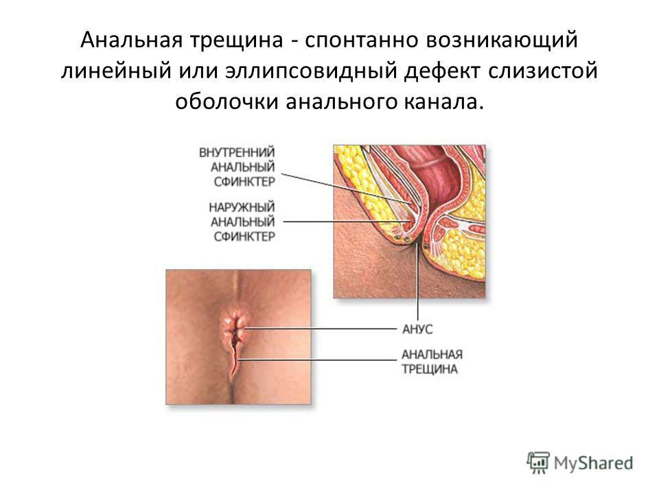 Анальная трещина - спонтанно возникающий линейный или эллипсовидный дефект слизистой оболочки анального канала.