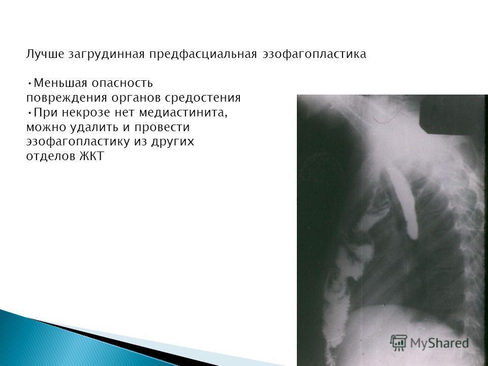 Лучше загрудинная предфасциальная эзофагопластика Меньшая опасность повреждения органов средостения При некрозе нет медиастинита, можно удалить и провести эзофагопластику из других отделов ЖКТ