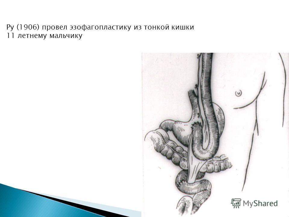 Ру (1906) провел эзофагопластику из тонкой кишки 11 летнему мальчику
