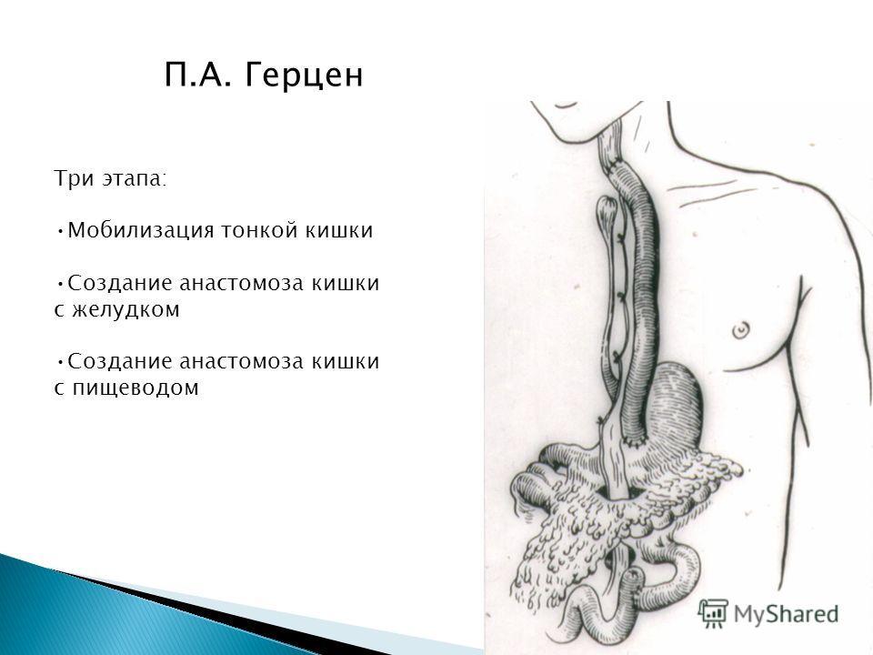 П.А. Герцен Три этапа: Мобилизация тонкой кишки Создание анастомоза кишки с желудком Создание анастомоза кишки с пищеводом