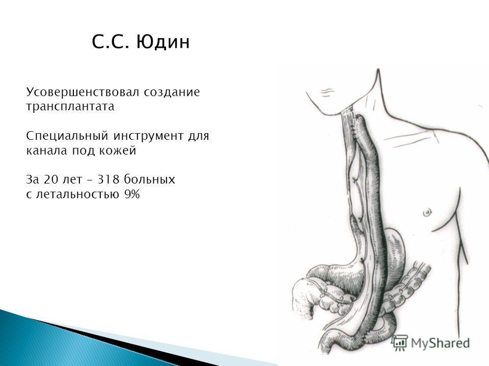 С.С. Юдин Усовершенствовал создание трансплантата Специальный инструмент для канала под кожей За 20 лет – 318 больных с летальностью 9%