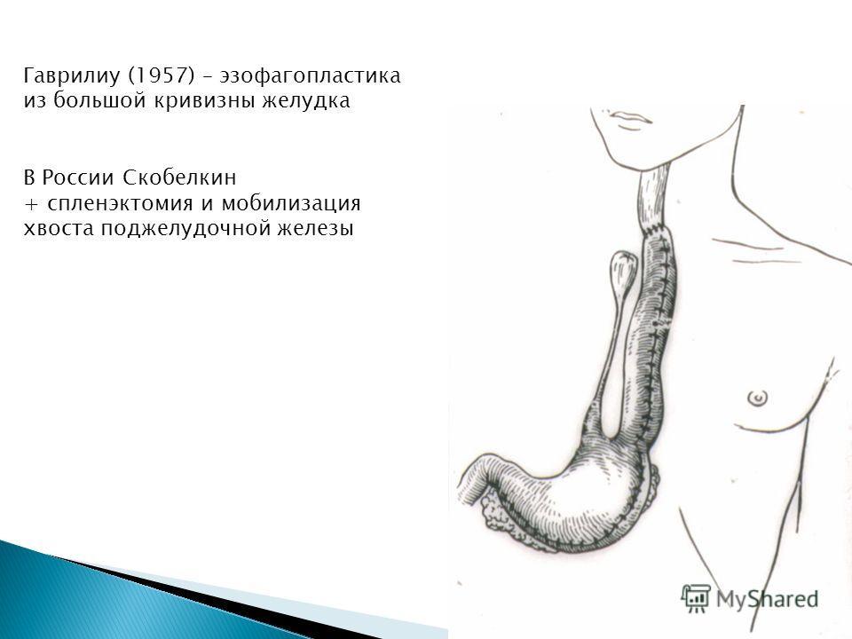 Гаврилиу (1957) – эзофагопластика из большой кривизны желудка В России Скобелкин + спленэктомия и мобилизация хвоста поджелудочной железы