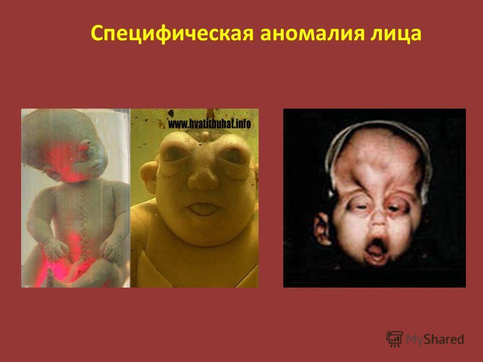 Специфическая аномалия лица