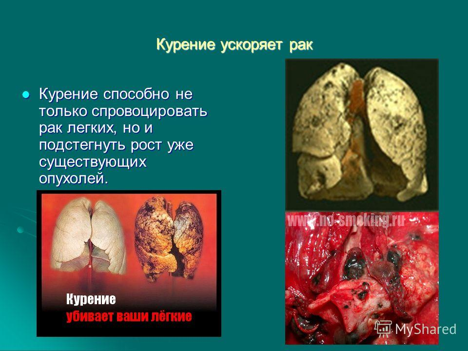 Курение ускоряет рак Курение способно не только спровоцировать рак легких, но и подстегнуть рост уже существующих опухолей. Курение способно не только спровоцировать рак легких, но и подстегнуть рост уже существующих опухолей.