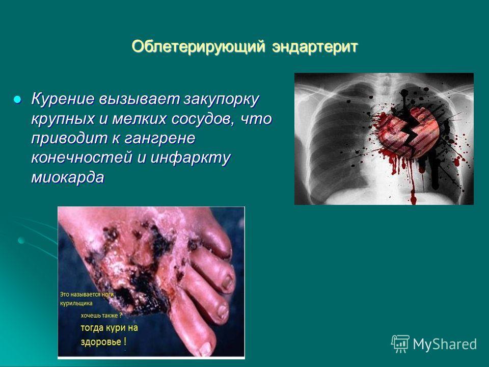 Облетерирующий эндартерит Курение вызывает закупорку крупных и мелких сосудов, что приводит к гангрене конечностей и инфаркту миокарда Курение вызывает закупорку крупных и мелких сосудов, что приводит к гангрене конечностей и инфаркту миокарда