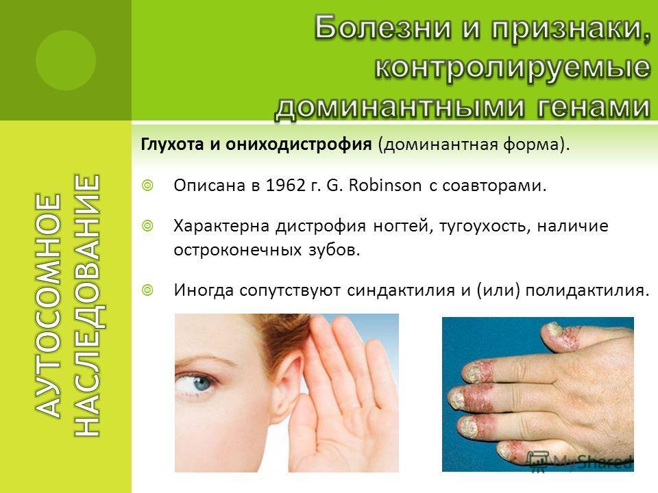 Глухота и ониходистрофия (доминантная форма). Описана в 1962 г. G. Robinson с соавторами. Характерна дистрофия ногтей, тугоухость, наличие остроконечных зубов. Иногда сопутствуют синдактилия и (или) полидактилия.