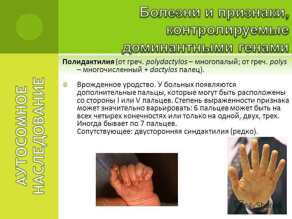 Полидактилия (от греч. polydactylos – многопалый; от греч. polys – многочисленный + dactylos палец). Врожденное уродство. У больных появляются дополнительные пальцы, которые могут быть расположены со стороны l или V пальцев. Степень выраженности приз