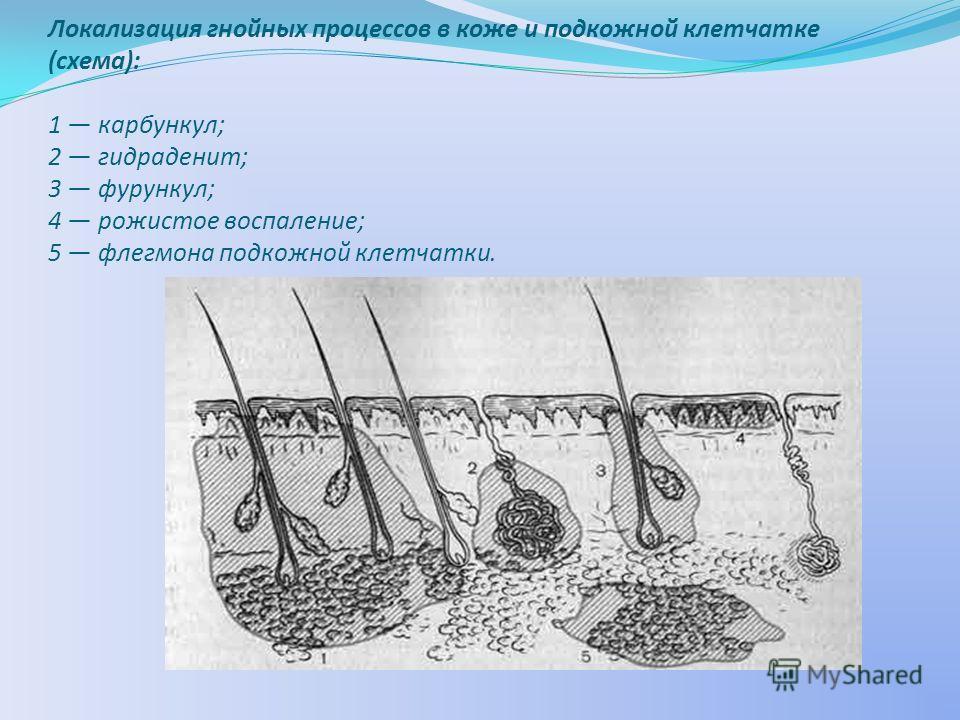Локализация гнойных процессов в коже и подкожной клетчатке (схема): 1 карбункул; 2 гидраденит; 3 фурункул; 4 рожистое воспаление; 5 флегмона подкожной клетчатки.