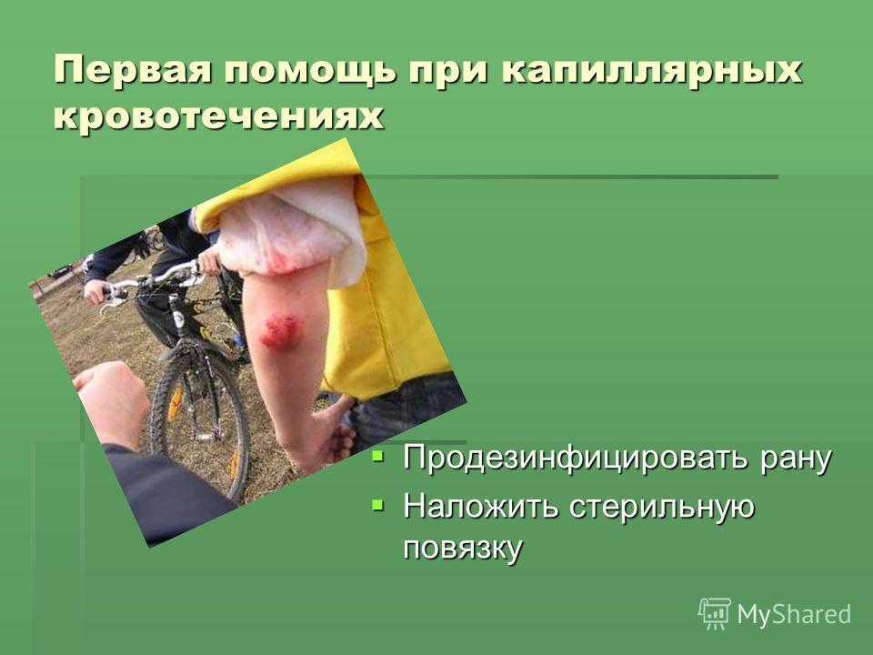 Первая помощь при капиллярных кровотечениях Продезинфицировать рану Продезинфицировать рану Наложить стерильную повязку Наложить стерильную повязку