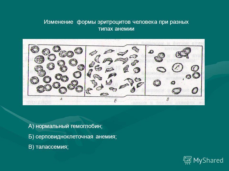 Изменение формы эритроцитов человека при разных типах анемии А) нормальный гемоглобин; Б) серповидноклеточная анемия; В) талассемия;
