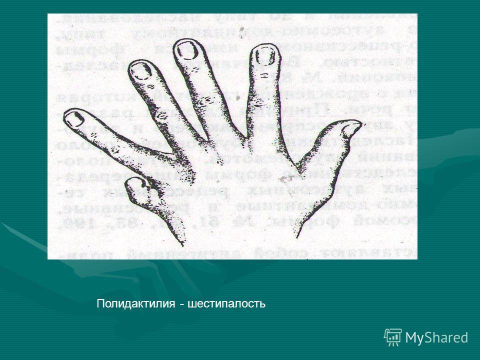 Полидактилия - шестипалость