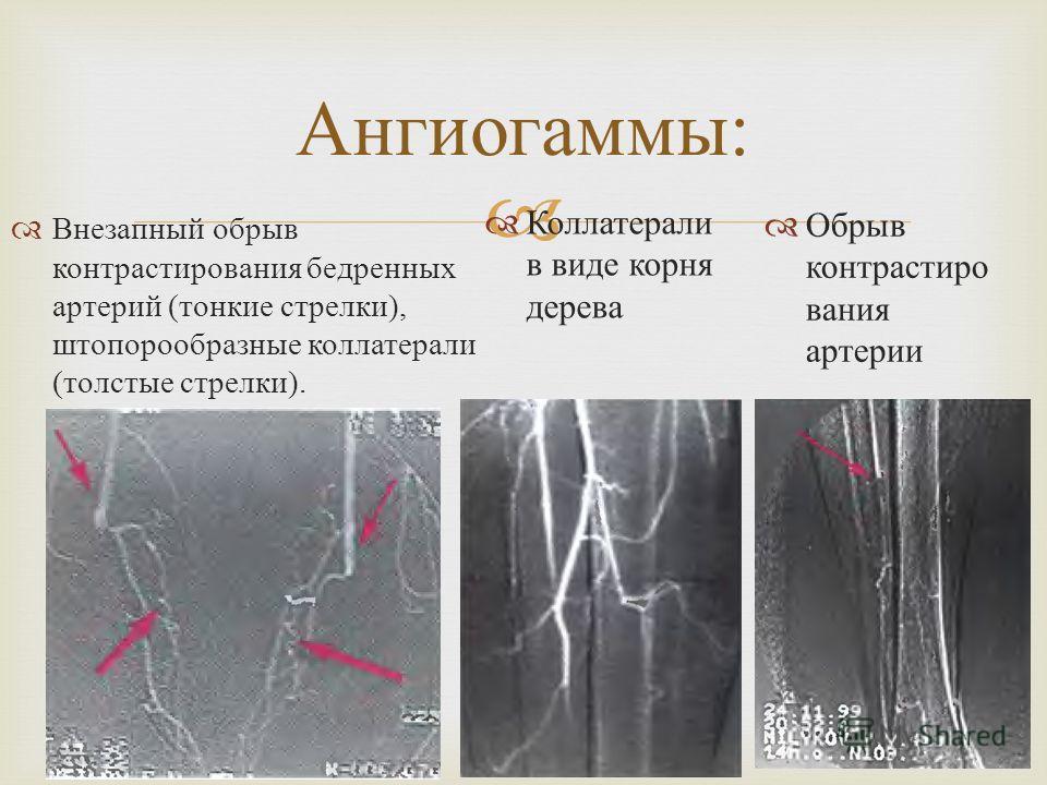 Внезапный обрыв контрастирования бедренных артерий ( тонкие стрелки ), штопорообразные коллатерали ( толстые стрелки ). Ангиогаммы : Коллатерали в виде корня дерева Обрыв контрастиро вания артерии