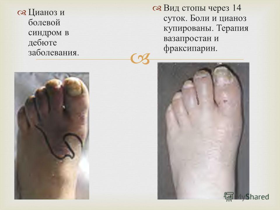 Цианоз и болевой синдром в дебюте заболевания. Вид стопы через 14 суток. Боли и цианоз купированы. Терапия вазапростан и фраксипарин.