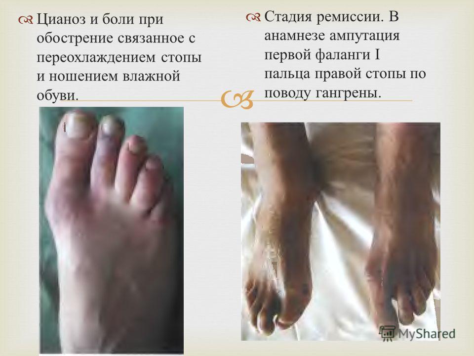 Цианоз и боли при обострение связанное с переохлаждением стопы и ношением влажной обуви. Стадия ремиссии. В анамнезе ампутация первой фаланги Ι пальца правой стопы по поводу гангрены.