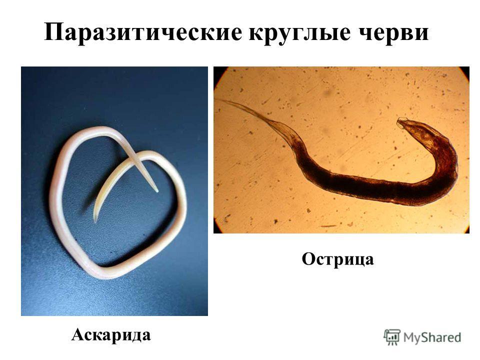 кольчатые черви паразиты человека