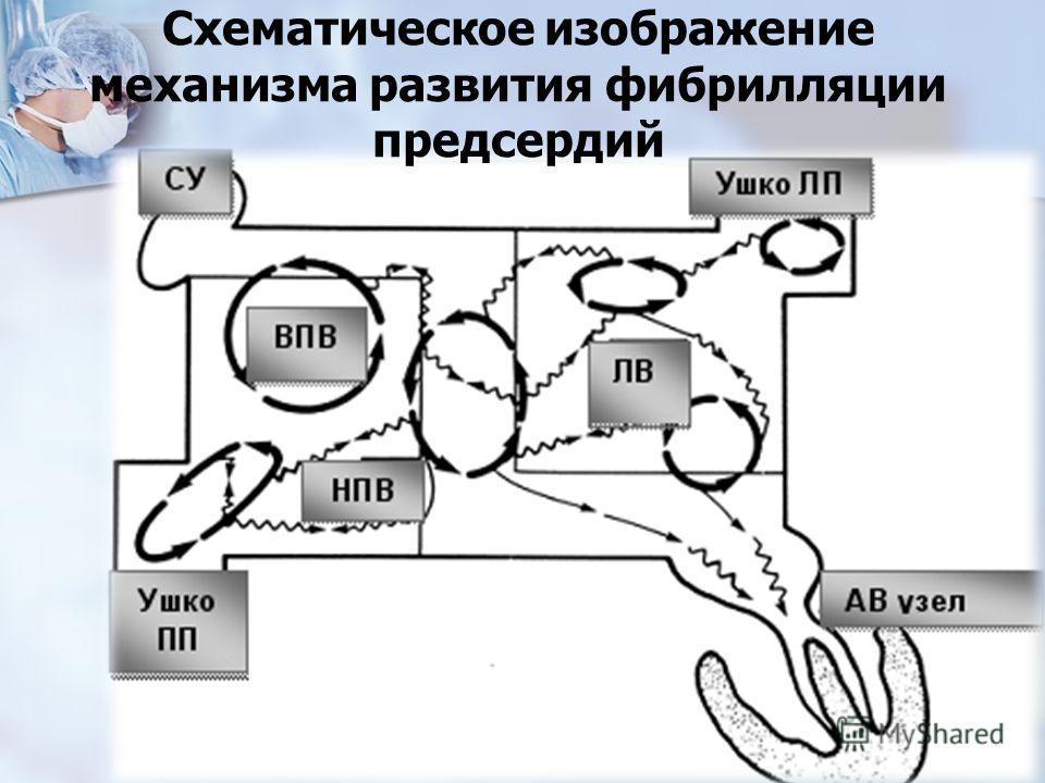 Схематическое изображение механизма развития фибрилляции предсердий