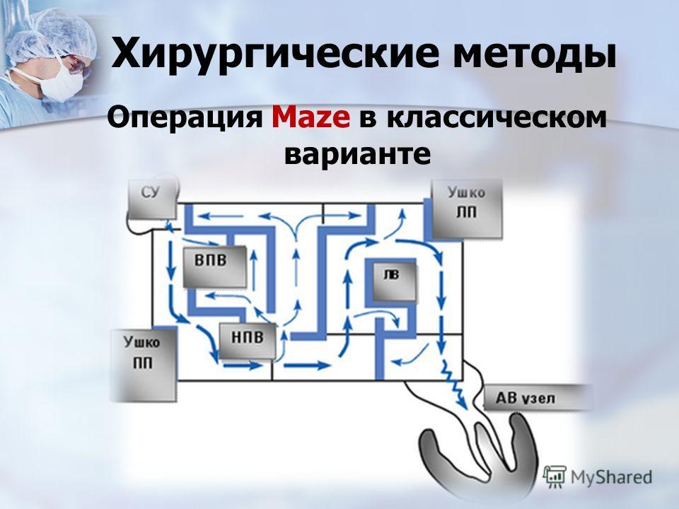 Хирургические методы Операция Maze в классическом варианте