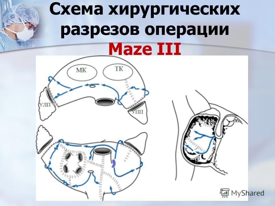 Схема хирургических разрезов операции Maze III