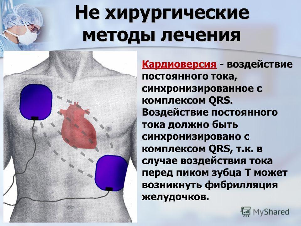 Кардиоверсия фото