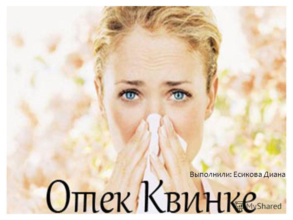 Выполнили: Есикова Диана