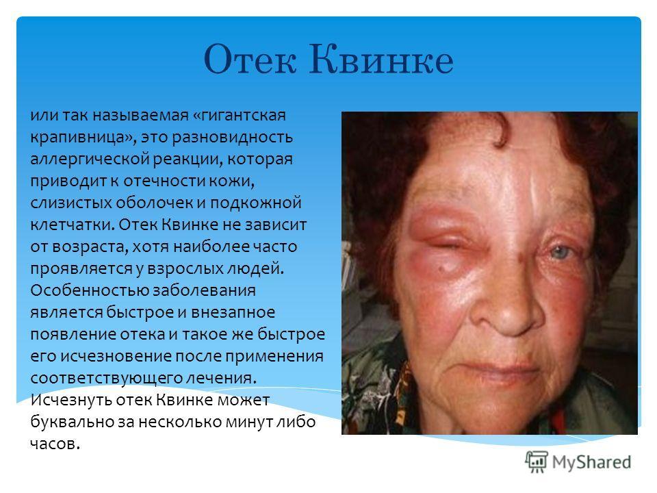 Скачать Презентацию на тему отека квинке - kirpich-v-krasnodare.ru