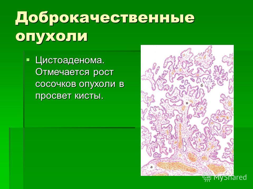 Доброкачественные опухоли Цистоаденома. Отмечается рост сосочков опухоли в просвет кисты. Цистоаденома. Отмечается рост сосочков опухоли в просвет кисты.