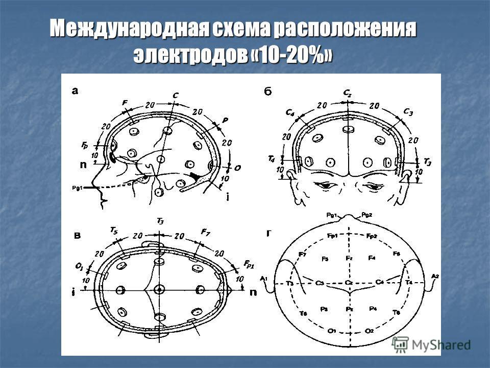 Международная схема расположения электродов «10-20%»