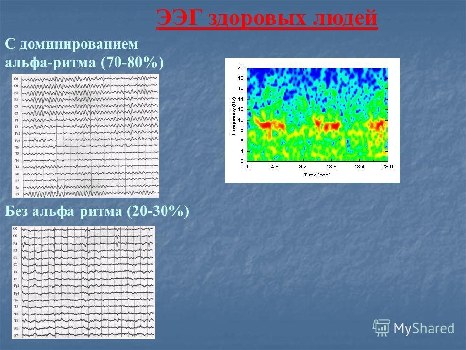 ЭЭГ здоровых людей С доминированием альфа-ритма (70-80%) Без альфа ритма (20-30%)