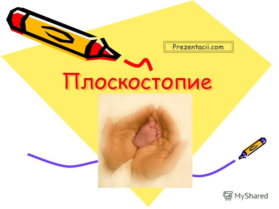 ПлоскостопиеПлоскостопие Prezentacii.com