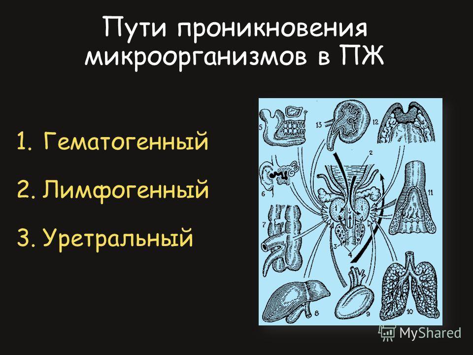 1.Гематогенный 2.Лимфогенный 3.Уретральный Пути проникновения микроорганизмов в ПЖ