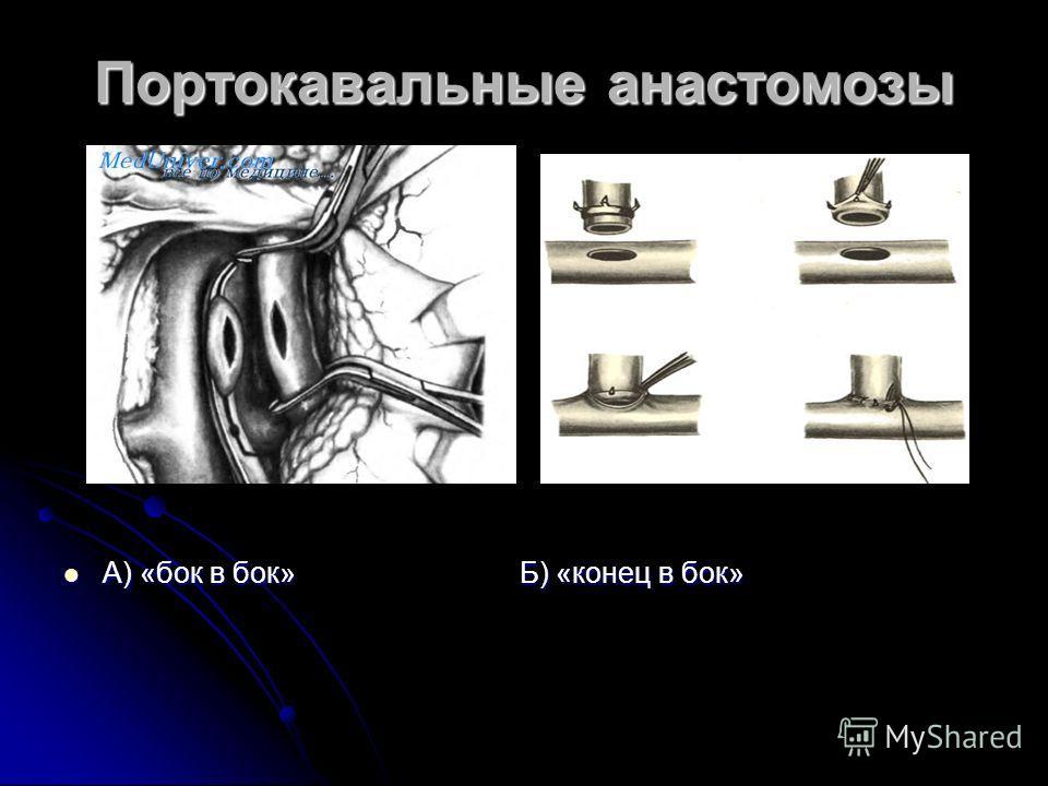 Портокавальные анастомозы А) «бок в бок» Б) «конец в бок» А) «бок в бок» Б) «конец в бок»