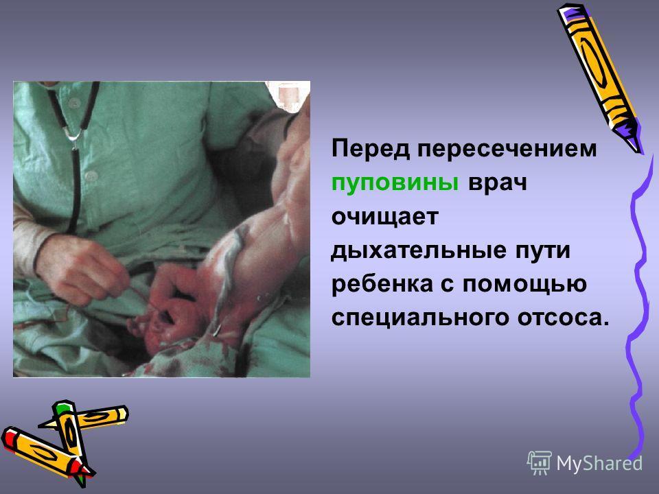 Перед пересечением пуповины врач очищает дыхательные пути ребенка с помощью специального отсоса.