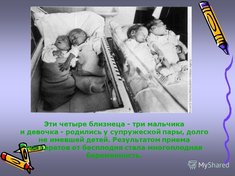 Эти четыре близнеца - три мальчика и девочка - родились у супружеской пары, долго не имевшей детей. Результатом приема препаратов от бесплодия стала многоплодная беременность.