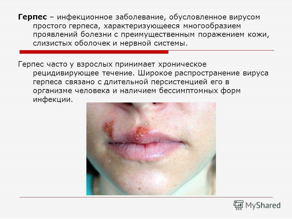 Герпес – инфекционное заболевание, обусловленное вирусом простого герпеса, характеризующееся многообразием проявлений болезни с преимущественным поражением кожи, слизистых оболочек и нервной системы. Герпес часто у взрослых принимает хроническое реци