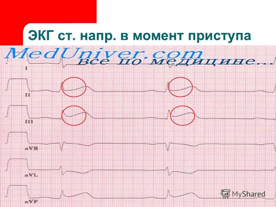 ЭКГ ст. напр. в момент приступа