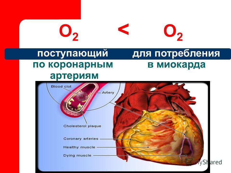 поступающий по коронарным артериям О 2 < О 2 для потребления в миокарда