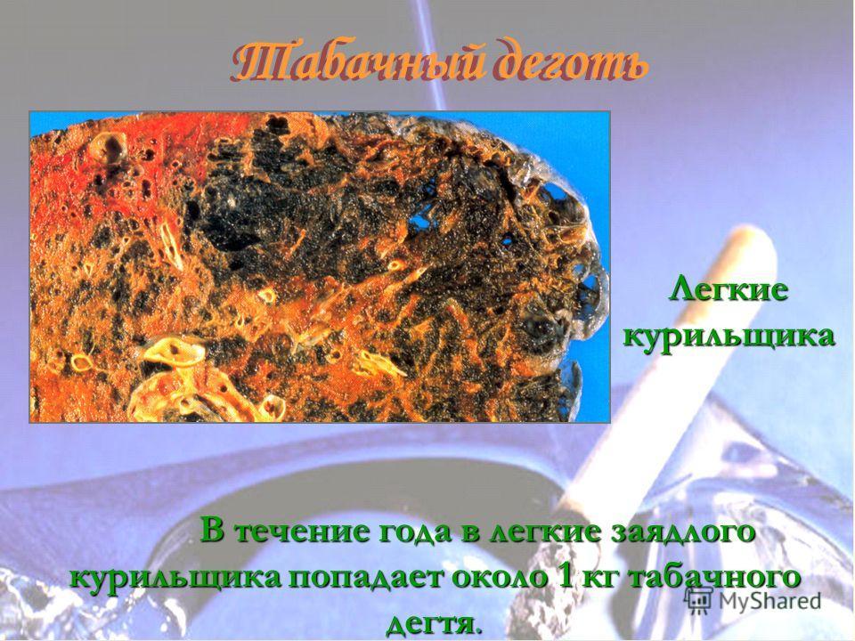 Табачный деготь Табачный деготь В течение года в легкие заядлого курильщика попадает около 1 кг табачного дегтя. Легкие курильщика