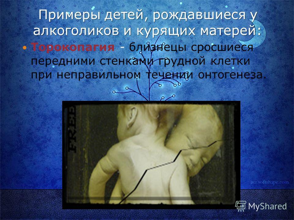 Примеры детей, рождавшиеся у алкоголиков и курящих матерей: Торокопагия - близнецы сросшиеся передними стенками грудной клетки при неправильном течении онтогенеза.