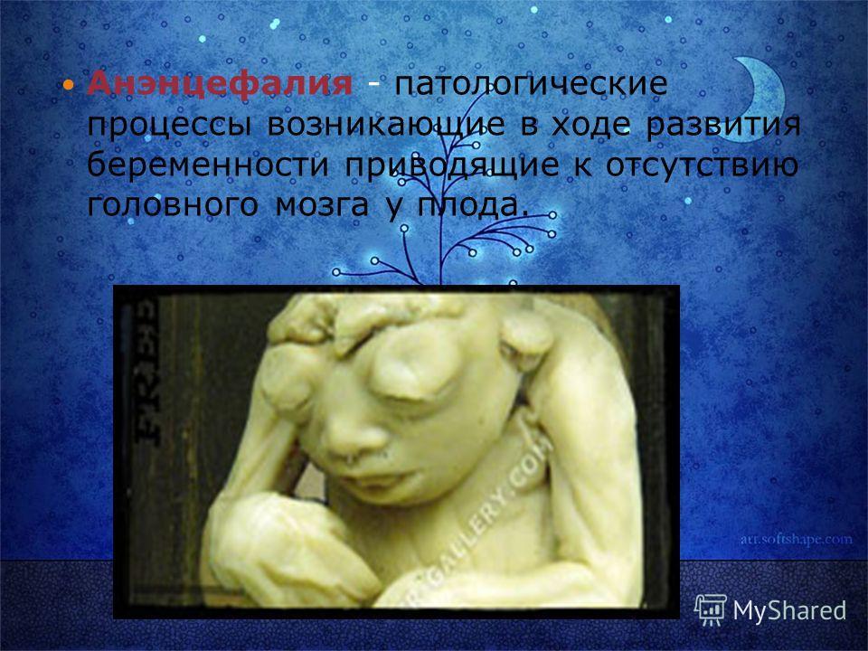 Анэнцефалия - патологические процессы возникающие в ходе развития беременности приводящие к отсутствию головного мозга у плода.