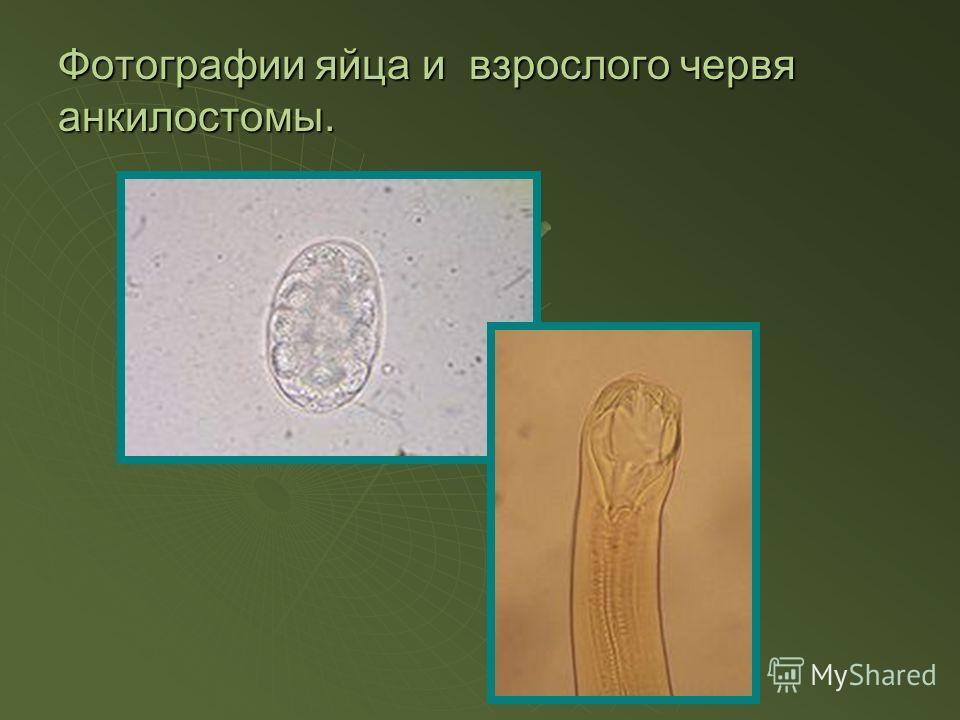 Фотографии яйца и взрослого червя анкилостомы.