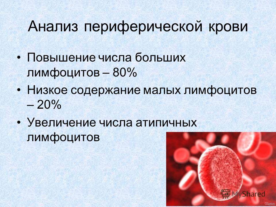 Анализ периферической крови Повышение числа больших лимфоцитов – 80% Низкое содержание малых лимфоцитов – 20% Увеличение числа атипичных лимфоцитов